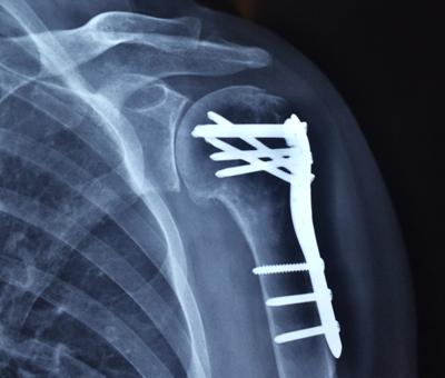 cirugia-hombro