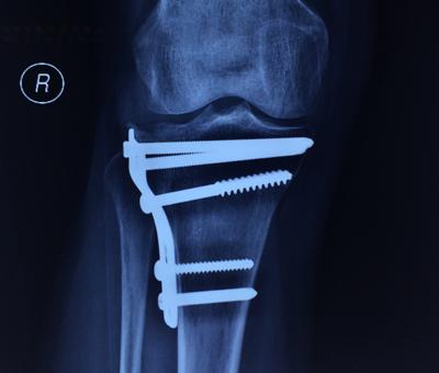 cirugia-rodilla